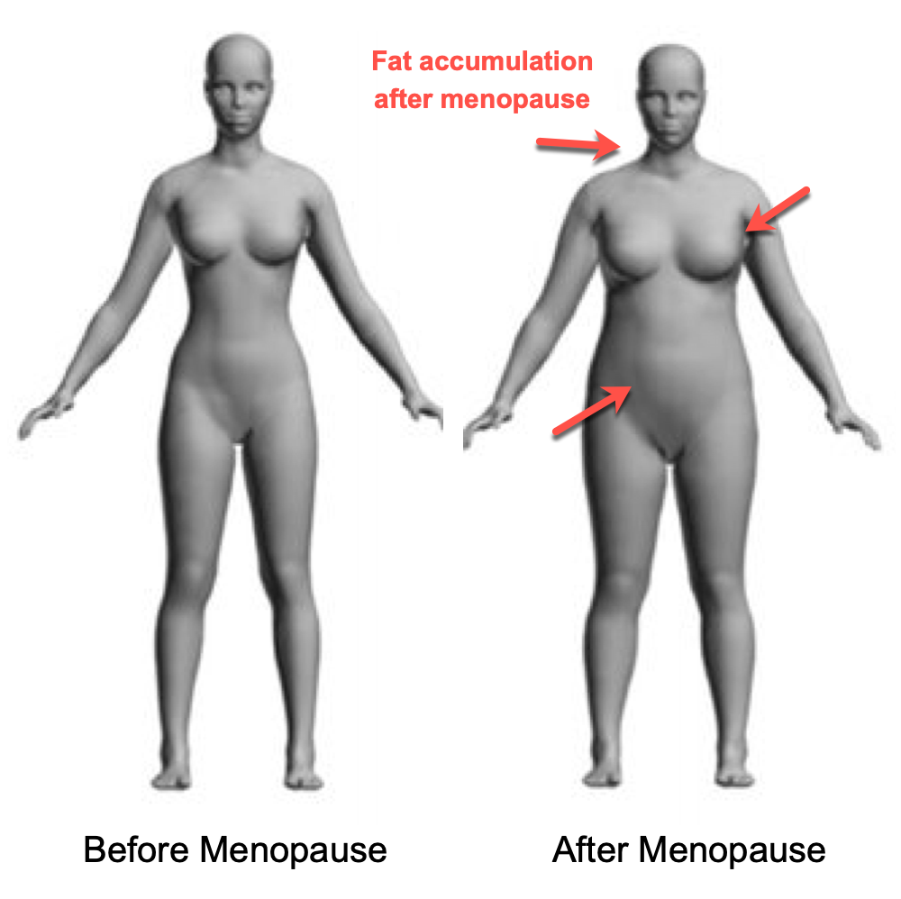 Changes in the Female Body After Menopause